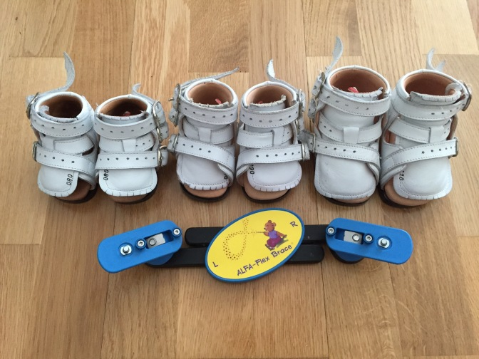 Our Clubfoot Journey: Growing feet